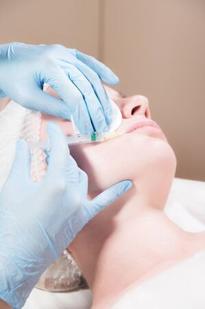 Close-up Attractive young woman gets anti-aging face injections. She lies calmly in a clinic or salon. An experienced young cosmetologist fills female wrinkles with hyaluronic acid from a syringe. Banque d'images - 132242634