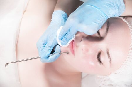 A professional procedure for cleaning the skin with a steel tool for acne and acne in a beauty parlor. Deep cleansing of a woman's face with a blackhead remover in a beauty salon. Beautician receiving cleansing therapy.