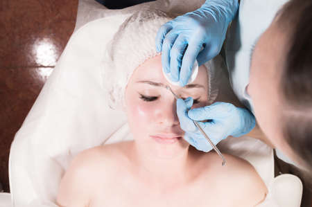 Close-up Professional face cleaning. Mechanical face cleansing procedure. Peeling of the skin of the face.