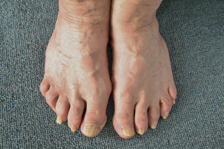 foot fungus: Toenail Fungus Stock Photo