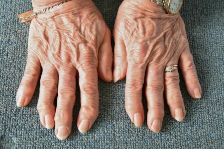 arthritic: Arthritic Hands