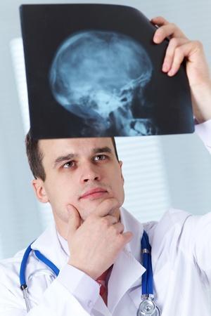 cranium: Male doctor examines X-ray picture of a human cranium