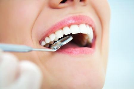 denti: Primer plano de mujer joven que tiene los dientes recurrido al examen