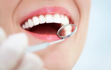 caries dental: Primer plano de mujer joven que tiene los dientes recurrido al examen