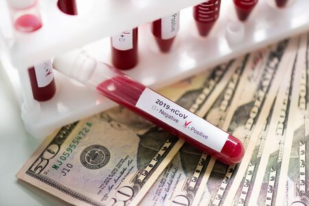 Corona virus covid-19 : closeup of blood sample vial on us dollar paper money bank notes. The concept of business and medicine in a global pandemic.