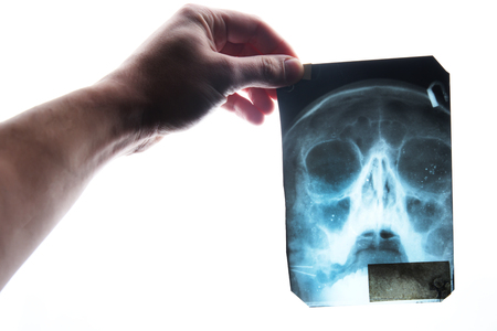 Doctor examines a x-ray of the skull