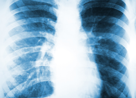 X-ray of human ribs and lungs. Diagnosis of human lung.