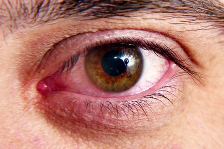 Red squirrel eyes, macro photo. Infection in the eye, bursting vessels of the eye. Stockfoto