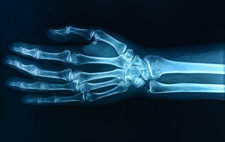 X-ray mano