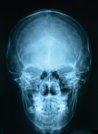 x rays negative: X-ray picture of the skull