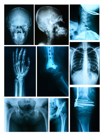 Collage of many X-rays. Very good quality photo