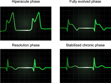 phases: Processe of miocardial infarction on four phases, monitor screen showing electrocardiogram signal, vector and JPEG Illustration
