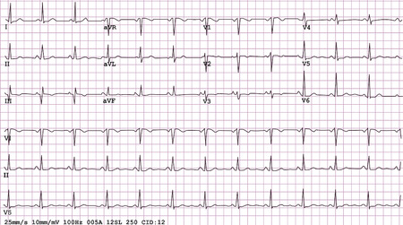 stress test: An example of a normal 12-lead sinus rhythm electrocardiogram, vector and JPEG Illustration