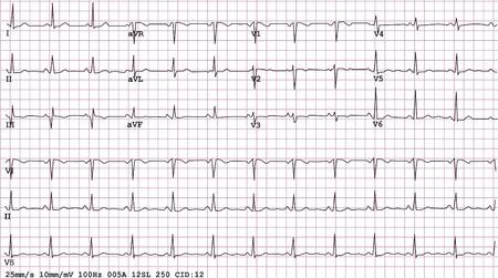 medicina interna: Un ejemplo de un electrocardiograma de ritmo sinusal normal de 12-plomo, vector y JPEG