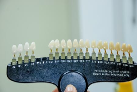 Dentista che controlla e seleziona il colore dei denti del giovane, primo piano. cartella colori dei denti Impianto dentale in plastica per scegliere il tono di colore dei denti. Servizi odontoiatrici cosmetici. Igiene orale. Cure odontoiatriche