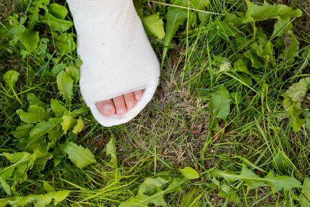 Une jambe de gypse blanc d'enfant sur l'herbe verte. Jeux actifs en plein air. le plâtre sur la jambe.Les conséquences de l'accident. Mauvais saut sur le trampoline.non-respect des règles de sécurité Banque d'images