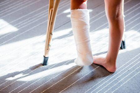 chica con una pierna rota. de cerca de los pies, uno con un vendaje de yeso. férula de pie para el tratamiento de lesiones por fracturas de huesos. esguince de tobillo después de saltar en el trampolín