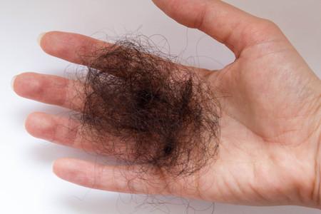 Hair loss in woman hands and brush, on white background, women postpartum defluvium Stock Photo