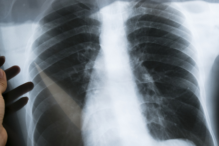 View of a child x-ray film, taken to examine the lungs