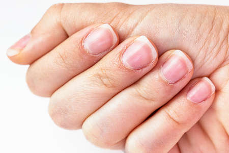 Close up on a female hands with dry skin and hangnails. Long fingernails and cuticles in bad condition. Chapped and neglected hands. Hands care concept. Lack of manicure in a lady fingers.