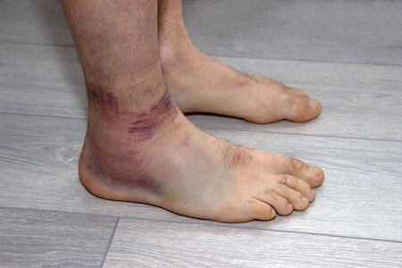 young man with sprained ankle on the floor