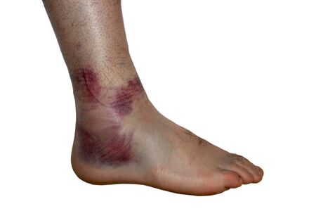 young male with sprained ankle isolated on white background.