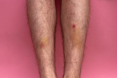 bruise and clotted blood on the leg of a young man on a pink background
