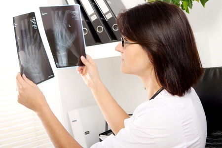 Young woman doctor is looking at xray of broken hand  photo