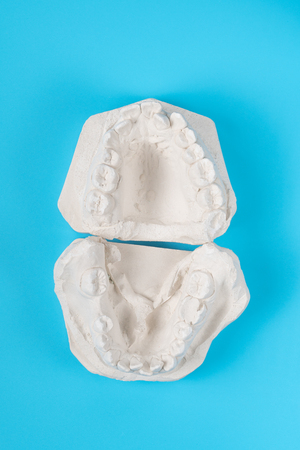 Dental casting gypsum model of human jaws. Crooked teeth and distal bite. Shots were made before treatment with braces . Technical shots on blue background.