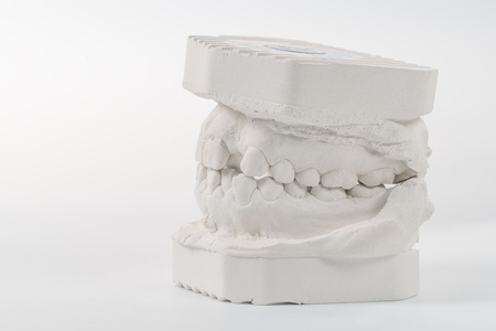 Dental casting gypsum model of human jaws. Crooked teeth and distal bite. Shots were made before treatment with braces . Technical shots on gray background.