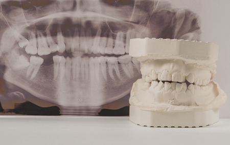 Dental casting gypsum model of human jaws with panoramic dental x-ray . Crooked teeth and distal bite. Shots were made before treatment with braces . Technical shots on gray background