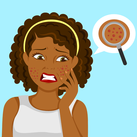 Dark skinned girl upset about pimples on her face Illustration