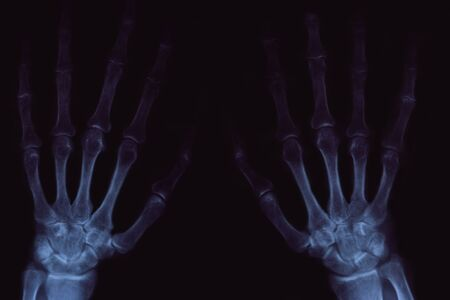 X-ray of hands with arthritis on black background. Image for medical articles.