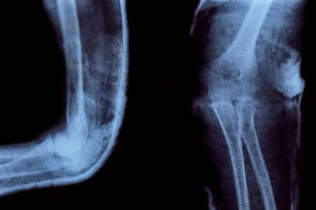 X-ray of elbow with broken humerus on black background. Image for medical articles.