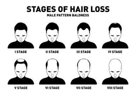 Hair loss. Stages and types of male hair loss. Male pattern baldness. Head of hairy and bald man in top view. Alopecia concept. Vector