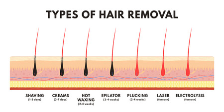 Hair removal concept. Shaving, depilation cream, waxing, epilator, plucking, laser hair removal and electrolysis. Comparison of different types of hair removal. Vector Vetores
