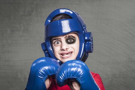 Chasseur battu avec de l'oeil noir, du nez saignant et des dents cassées Banque d'images