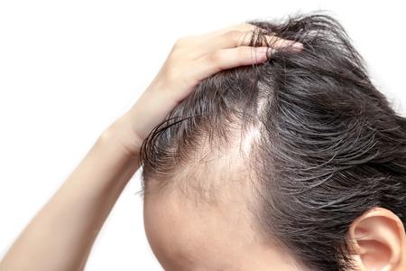 Kale man of vrouw maakt zich zorgen over zijn of haar minder haarlijn op witte achtergrond geïsoleerd Stockfoto