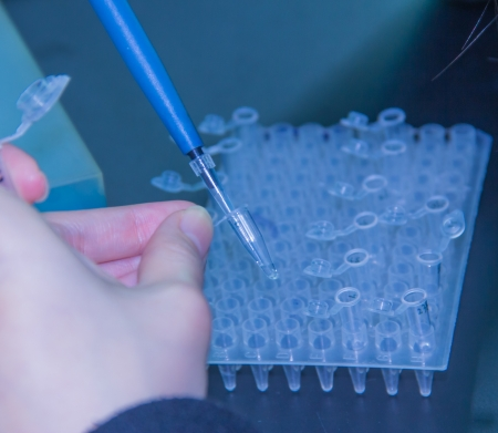 enzyme: Adding samples with finnpipette This is the step of adding enzyme Stock Photo
