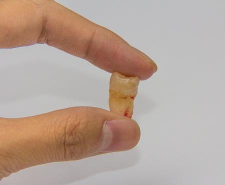 molares: muela del juicio, en los seres humanos, es cualquiera de los habituales cuatro terceros molares