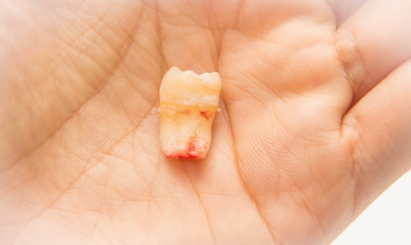 wisdom tooth, in humans, is any of the usual four third molars  Stock Photo