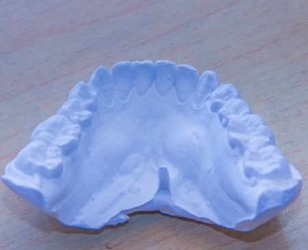 dental cast--important to orthodontics
