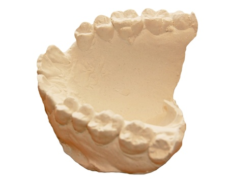 scarce resources: dental cast--important to orthodontics