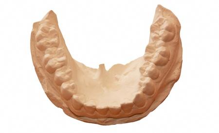 dental cast--important to orthodontics