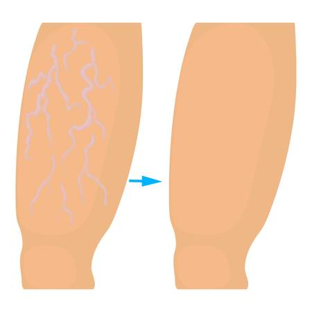 operation for: Varicose veins operation icon. Cartoon illustration of varicose veins operation vector icon for web