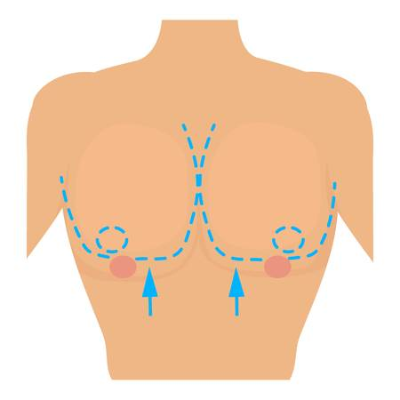 Woman breast marked out for cosmetic surgery icon. Cartoon illustration of woman breast marked out for cosmetic surgery vector icon for web Illustration