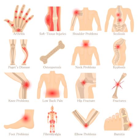 Choroby ortopedyczne zestaw ikon, styl kreskówki