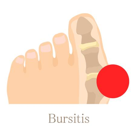 hip fracture: Bursitis icon, cartoon style Illustration