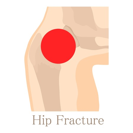 forearm: Hip fracture icon, cartoon style Illustration
