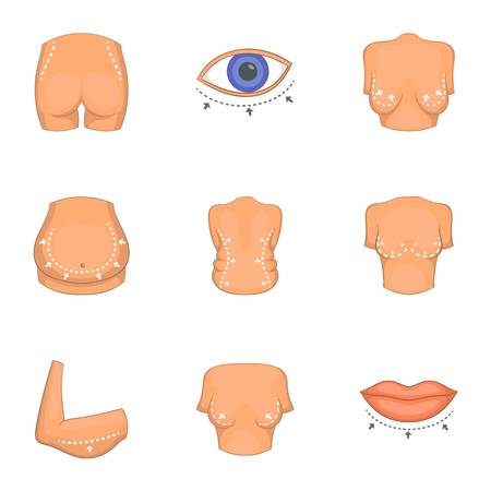Type of liposuction icons set, cartoon style.